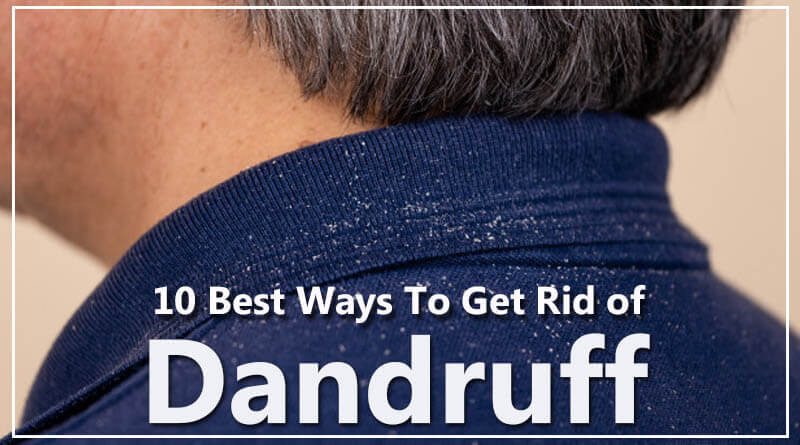 10 Best Ways To Get Rid of Dandruff